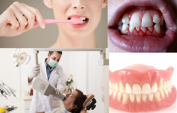 Top 10 Myths about Dentist -- Dentist Mississauga